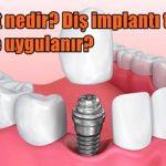 İmplant nedir? Diş implantı tedavisi kimlere uygulanır?