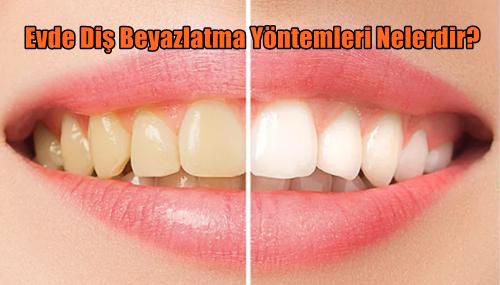 Evde Diş Beyazlatma Yöntemleri Nelerdir?