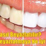 Diş Nasıl Beyazlatılır? Diş Beyazlatmaya Ne İyi Gelir?