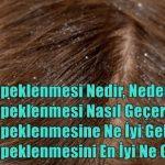 Saç Kepeklenmesi Nedir, NedenOlur? Saç Kepeklenmesi Nasıl Geçer?